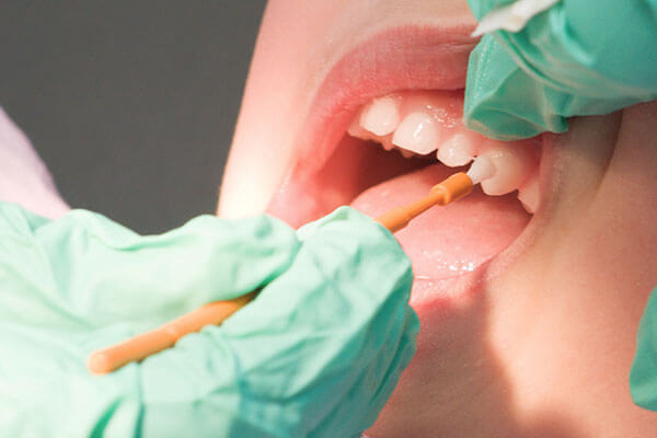 Closeup of fluoride being applied to child's teeth